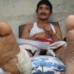 Ciudadano de Aucayacu que cayó baleado por un trampero pide ayuda para curar graves heridas