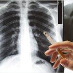 Fumadores con mayor riesgo de complicaciones al contraer Covid-19